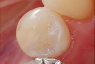 e-maxで美しい白い歯イメージ