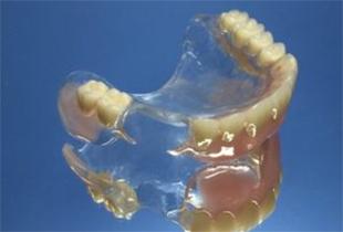 金属のバネがない義歯イメージ